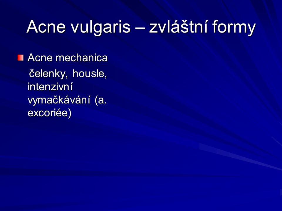 Acne vulgaris – zvláštní formy Acne mechanica čelenky, housle, intenzivní vymačkávání (a. excoriée) čelenky, housle, intenzivní vymačkávání (a. excori