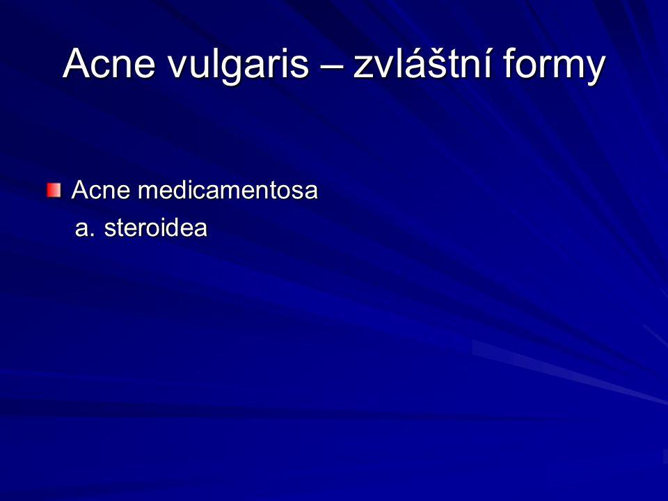 Acne vulgaris – zvláštní formy Acne medicamentosa a. steroidea a. steroidea