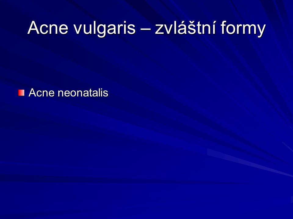 Acne vulgaris – zvláštní formy Acne neonatalis