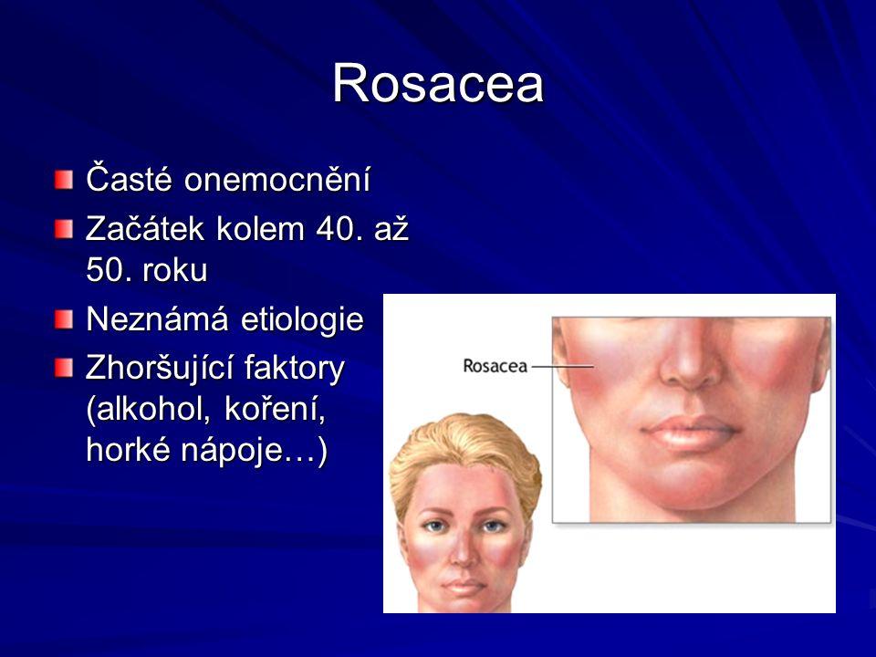 Rosacea Časté onemocnění Začátek kolem 40. až 50. roku Neznámá etiologie Zhoršující faktory (alkohol, koření, horké nápoje…)