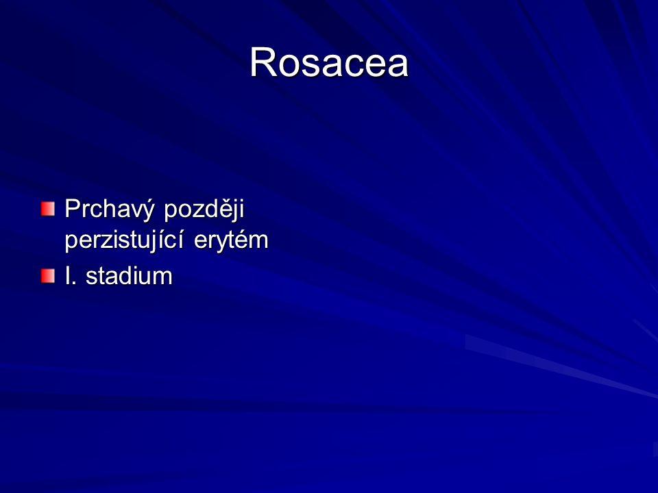 Rosacea Prchavý později perzistující erytém I. stadium