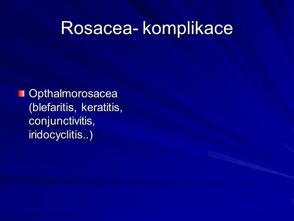 Rosacea- komplikace Opthalmorosacea (blefaritis, keratitis, conjunctivitis, iridocyclitis..)