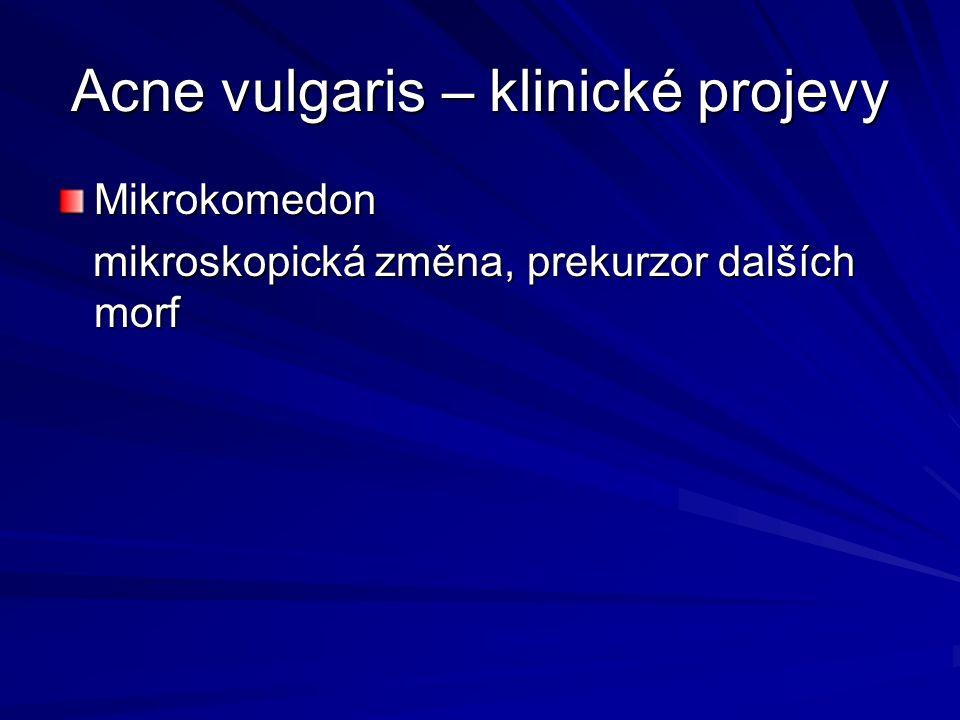 Acne vulgaris – klinické projevy Mikrokomedon mikroskopická změna, prekurzor dalších morf mikroskopická změna, prekurzor dalších morf