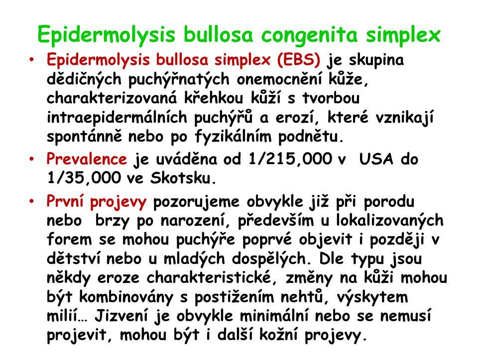 Epidermolysis bullosa congenita simplex Epidermolysis bullosa simplex (EBS) je skupina dědičných puchýřnatých onemocnění kůže, charakterizovaná křehkou kůží s tvorbou intraepidermálních puchýřů a erozí, které vznikají spontánně nebo po fyzikálním podnětu.