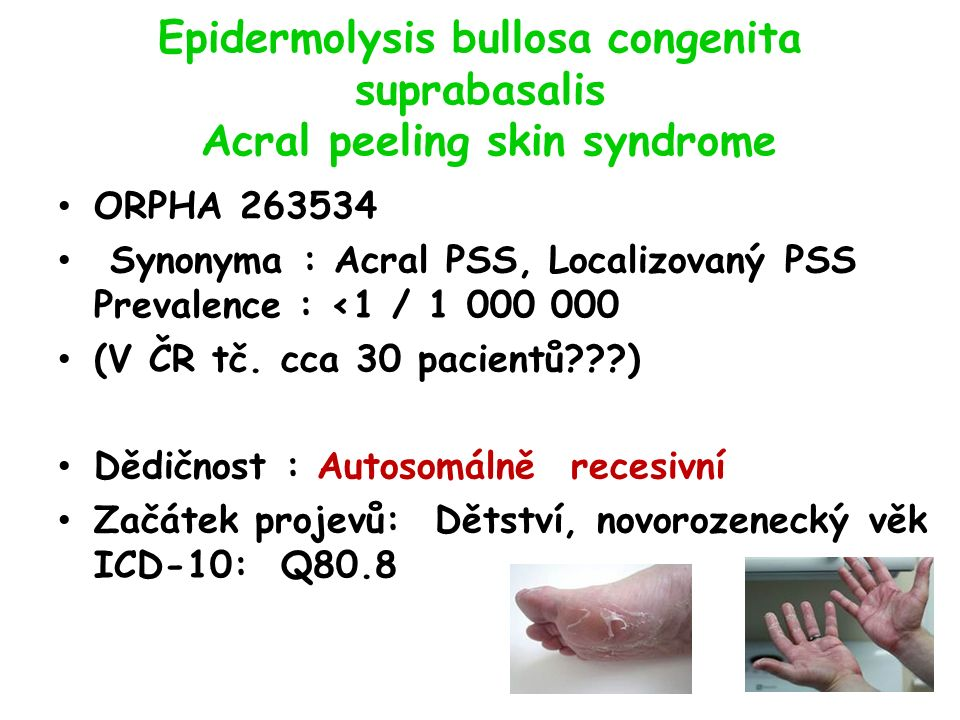 Epidermolysis bullosa congenita suprabasalis Acral peeling skin syndrome ORPHA 263534 Synonyma : Acral PSS, Localizovaný PSS Prevalence : <1 / 1 000 0