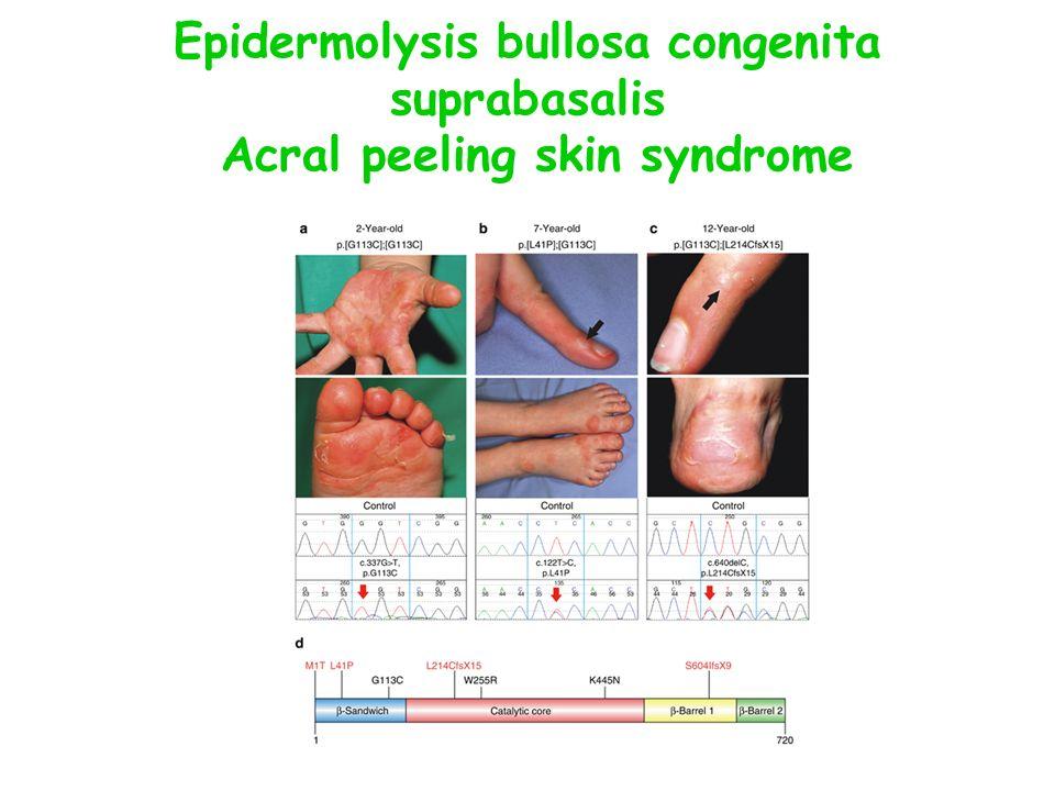 Epidermolysis bullosa congenita suprabasalis Acral peeling skin syndrome