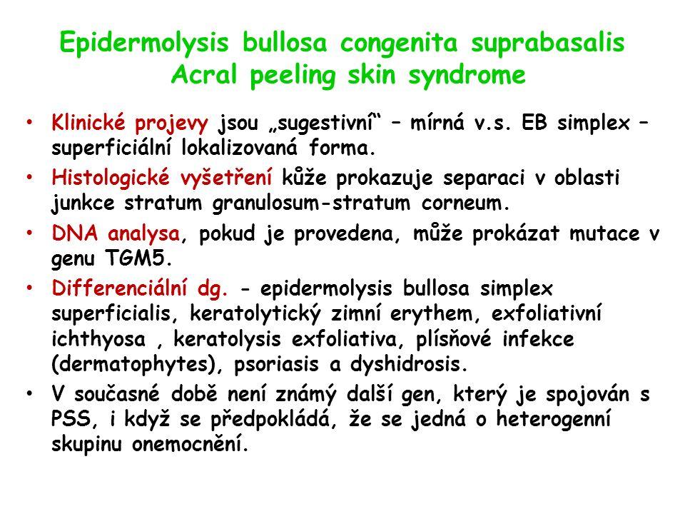 """Epidermolysis bullosa congenita suprabasalis Acral peeling skin syndrome Klinické projevy jsou """"sugestivní – mírná v.s."""