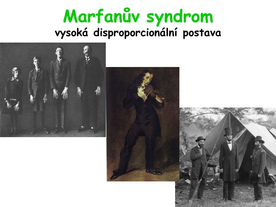 Marfanův syndrom vysoká disproporcionální postava