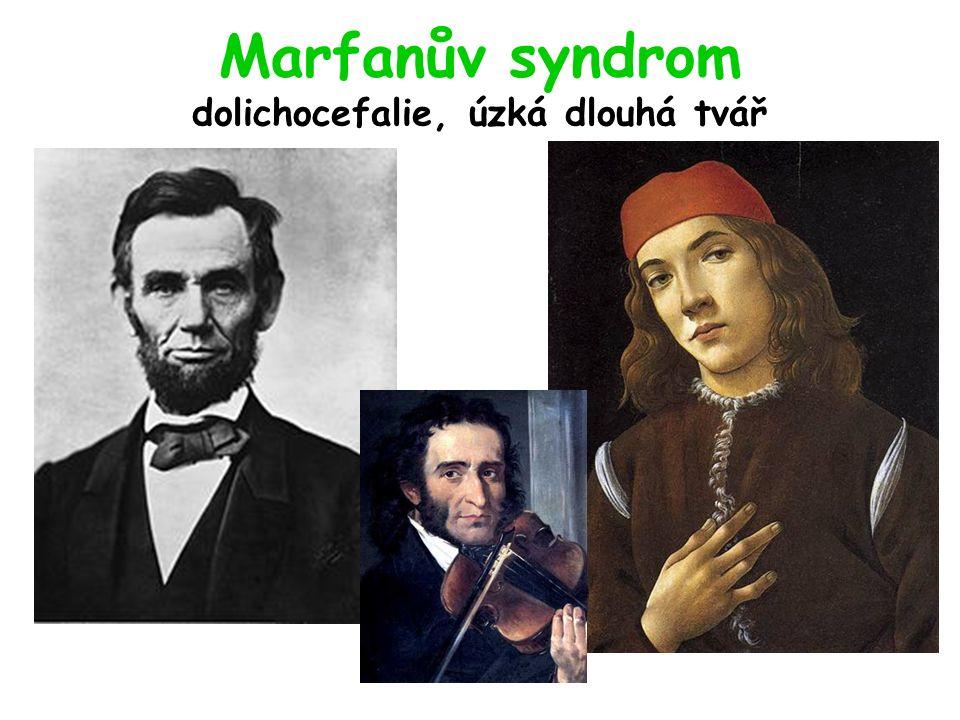 Marfanův syndrom dolichocefalie, úzká dlouhá tvář