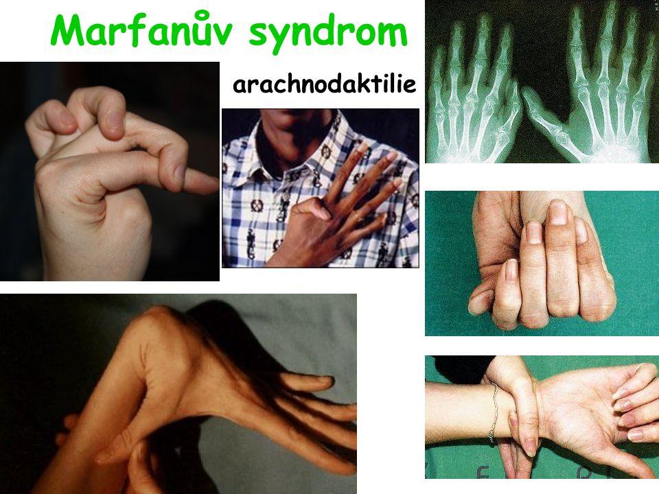 Marfanův syndrom arachnodaktilie