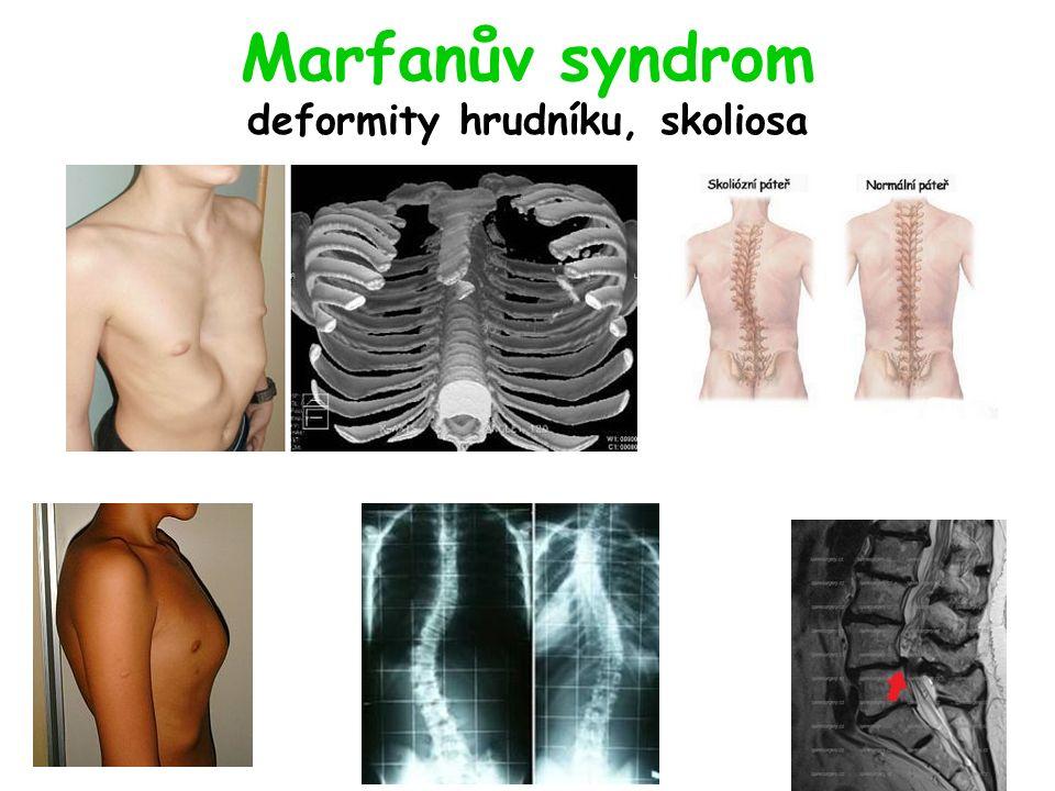 Marfanův syndrom deformity hrudníku, skoliosa