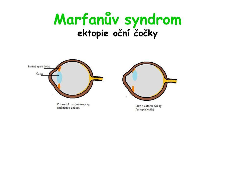 Marfanův syndrom ektopie oční čočky