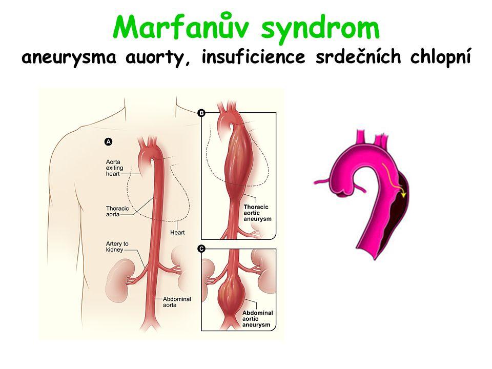 Marfanův syndrom aneurysma auorty, insuficience srdečních chlopní