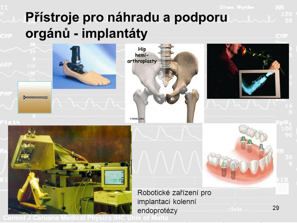 Carmel J Caruana Medical Physics IHC Univ of Malta 29 Přístroje pro náhradu a podporu orgánů - implantáty Robotické zařízení pro implantaci kolenní endoprotézy