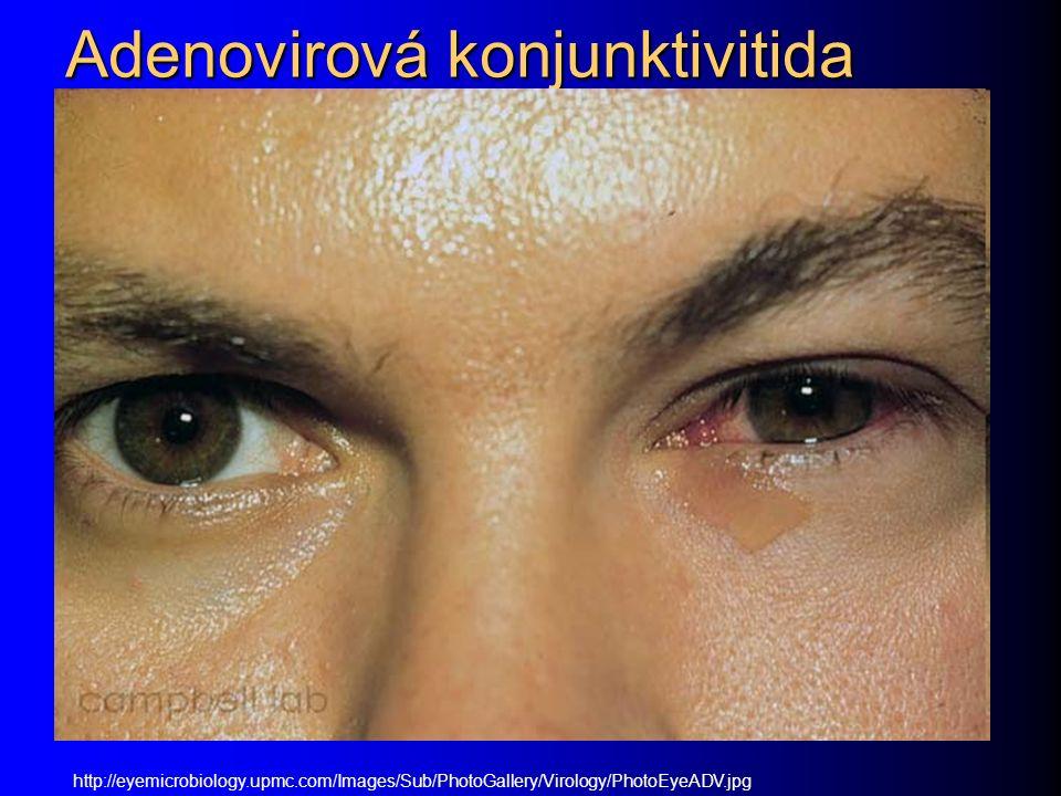 Adenovirová konjunktivitida http://eyemicrobiology.upmc.com/Images/Sub/PhotoGallery/Virology/PhotoEyeADV.jpg