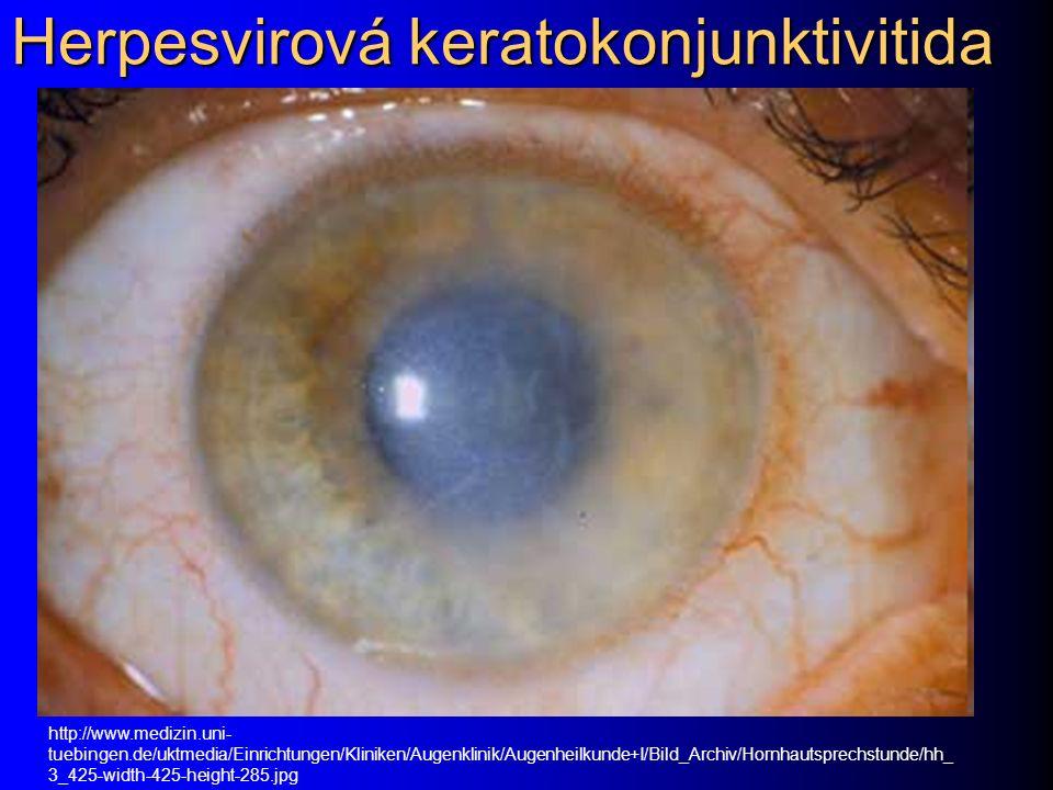 Herpesvirová keratokonjunktivitida http://www.medizin.uni- tuebingen.de/uktmedia/Einrichtungen/Kliniken/Augenklinik/Augenheilkunde+I/Bild_Archiv/Hornh