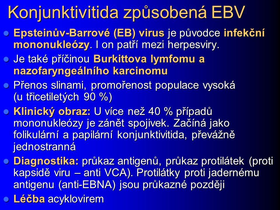 Konjunktivitida způsobená EBV Epsteinův-Barrové (EB) virus je původce infekční mononukleózy. I on patří mezi herpesviry. Epsteinův-Barrové (EB) virus