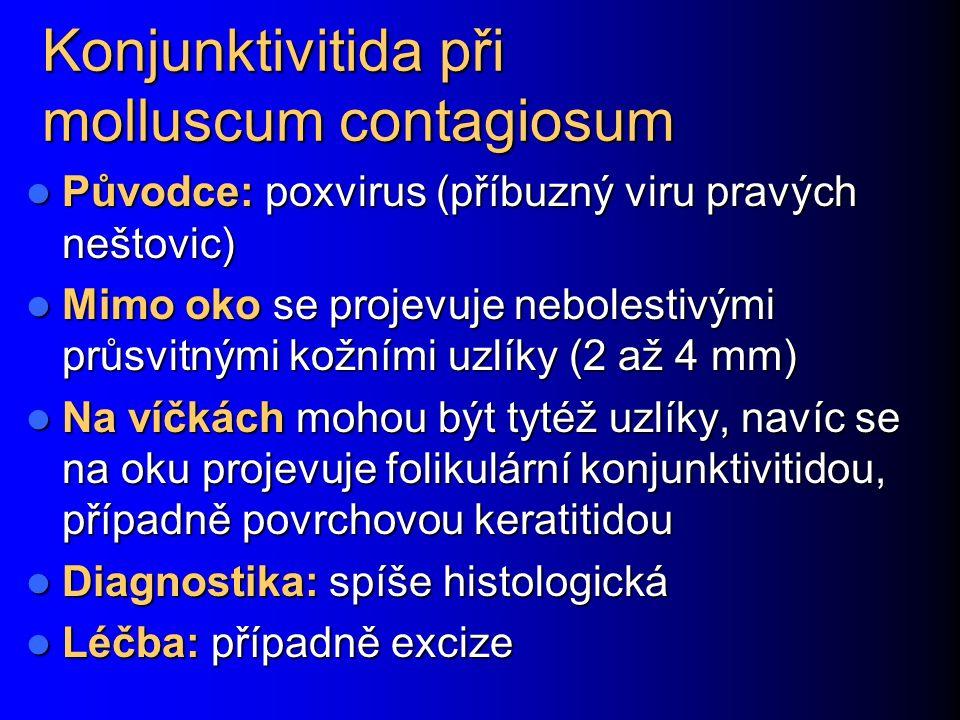 Konjunktivitida při molluscum contagiosum Původce: poxvirus (příbuzný viru pravých neštovic) Původce: poxvirus (příbuzný viru pravých neštovic) Mimo o