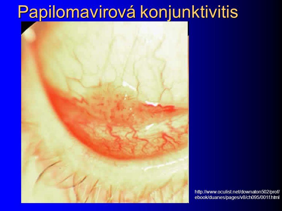 Papilomavirová konjunktivitis http://www.oculist.net/downaton502/prof/ ebook/duanes/pages/v8/ch095/001f.html
