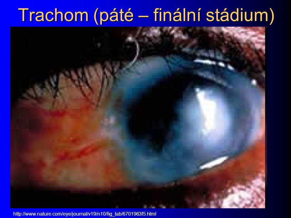 Trachom (páté – finální stádium) http://www.nature.com/eye/journal/v19/n10/fig_tab/6701963f5.html