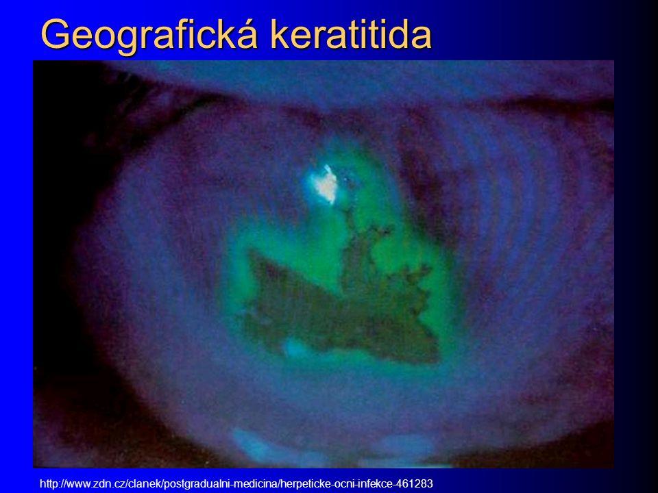 Geografická keratitida http://www.zdn.cz/clanek/postgradualni-medicina/herpeticke-ocni-infekce-461283