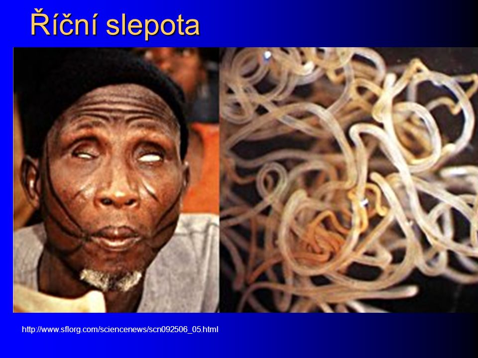 Říční slepota http://www.sflorg.com/sciencenews/scn092506_05.html