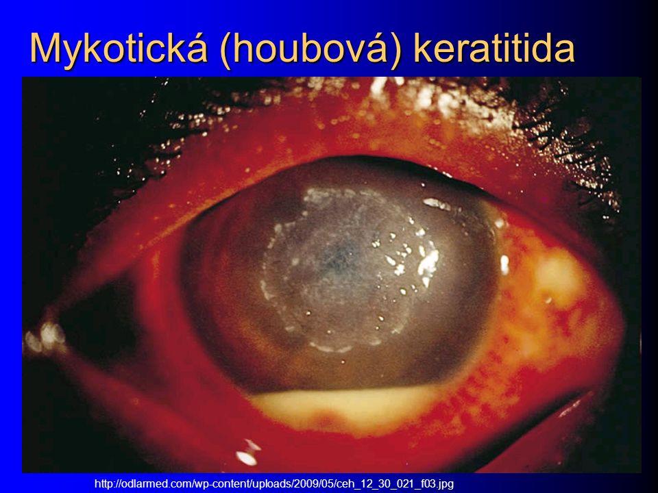 Mykotická (houbová) keratitida http://odlarmed.com/wp-content/uploads/2009/05/ceh_12_30_021_f03.jpg