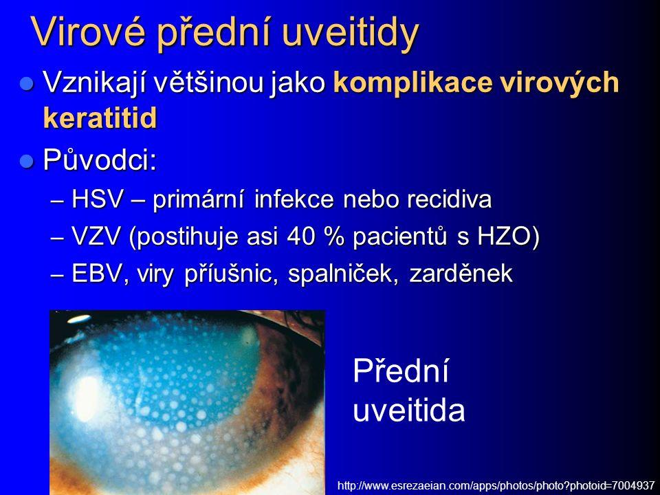 Virové přední uveitidy Vznikají většinou jako komplikace virových keratitid Vznikají většinou jako komplikace virových keratitid Původci: Původci: – HSV – primární infekce nebo recidiva – VZV (postihuje asi 40 % pacientů s HZO) – EBV, viry příušnic, spalniček, zarděnek http://www.esrezaeian.com/apps/photos/photo?photoid=7004937 Přední uveitida