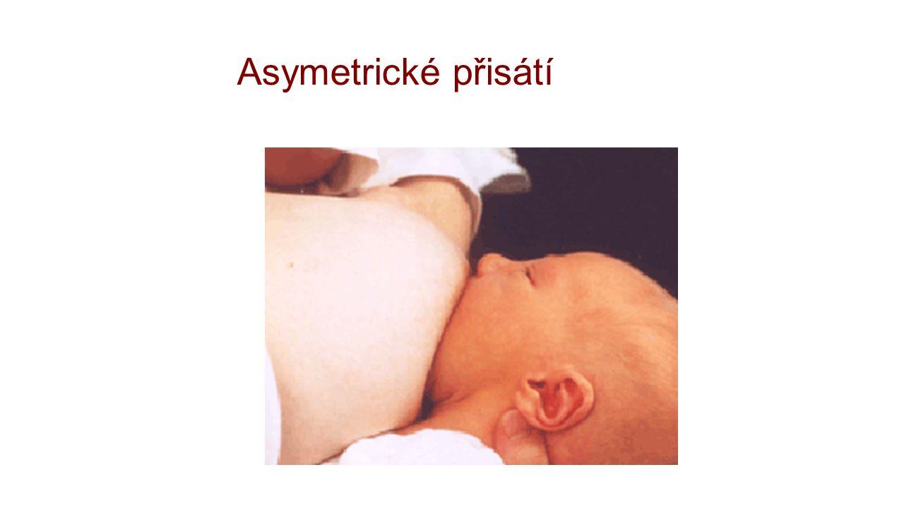 Asymetrické přisátí