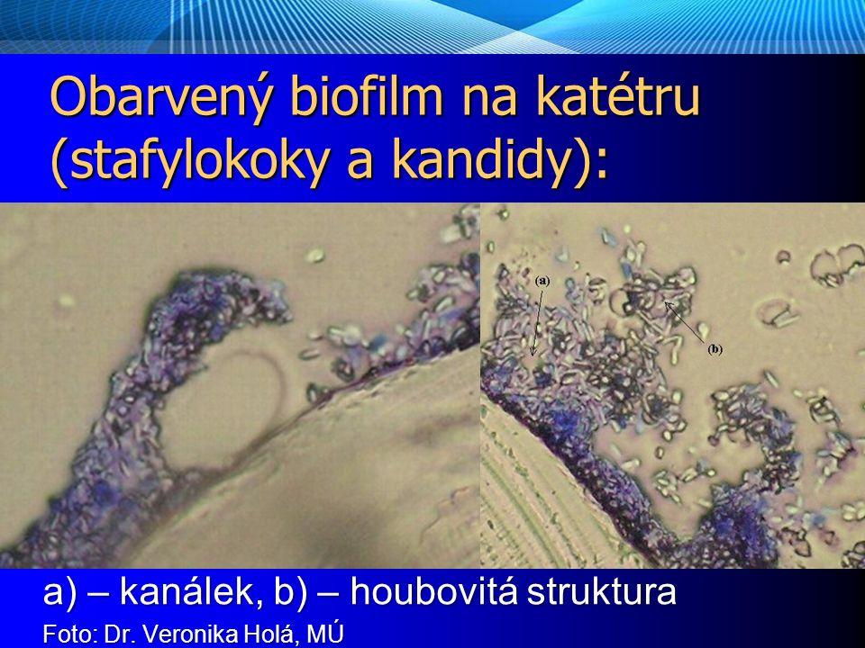 Obarvený biofilm na katétru (stafylokoky a kandidy): a) – kanálek, b) – houbovitá struktura Foto: Dr.