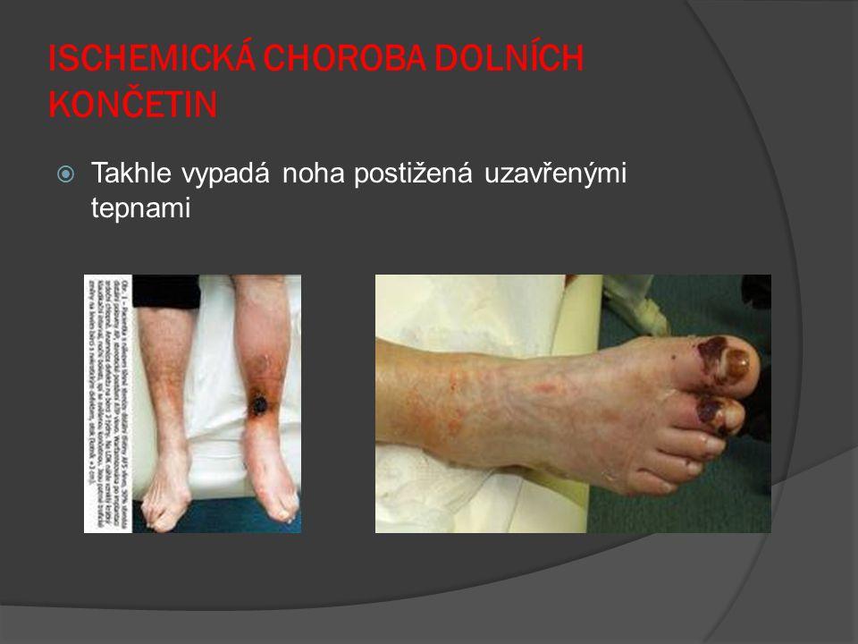 ISCHEMICKÁ CHOROBA DOLNÍCH KONČETIN  Takhle vypadá noha postižená uzavřenými tepnami