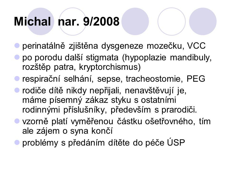 Michal nar. 9/2008 perinatálně zjištěna dysgeneze mozečku, VCC po porodu další stigmata (hypoplazie mandibuly, rozštěp patra, kryptorchismus) respirač