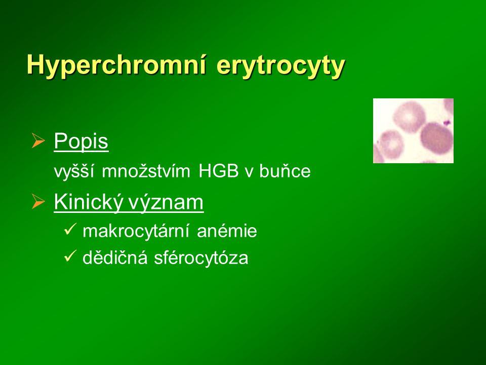 Hyperchromní erytrocyty  Popis vyšší množstvím HGB v buňce  Kinický význam makrocytární anémie dědičná sférocytóza