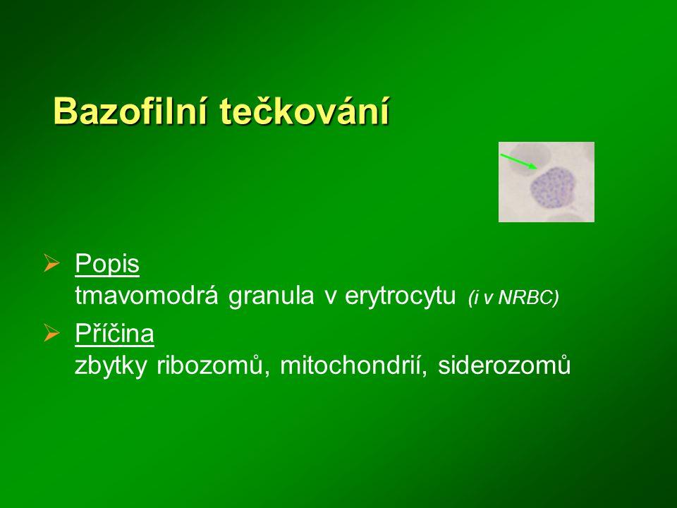 Bazofilní tečkování  Popis tmavomodrá granula v erytrocytu (i v NRBC)  Příčina zbytky ribozomů, mitochondrií, siderozomů