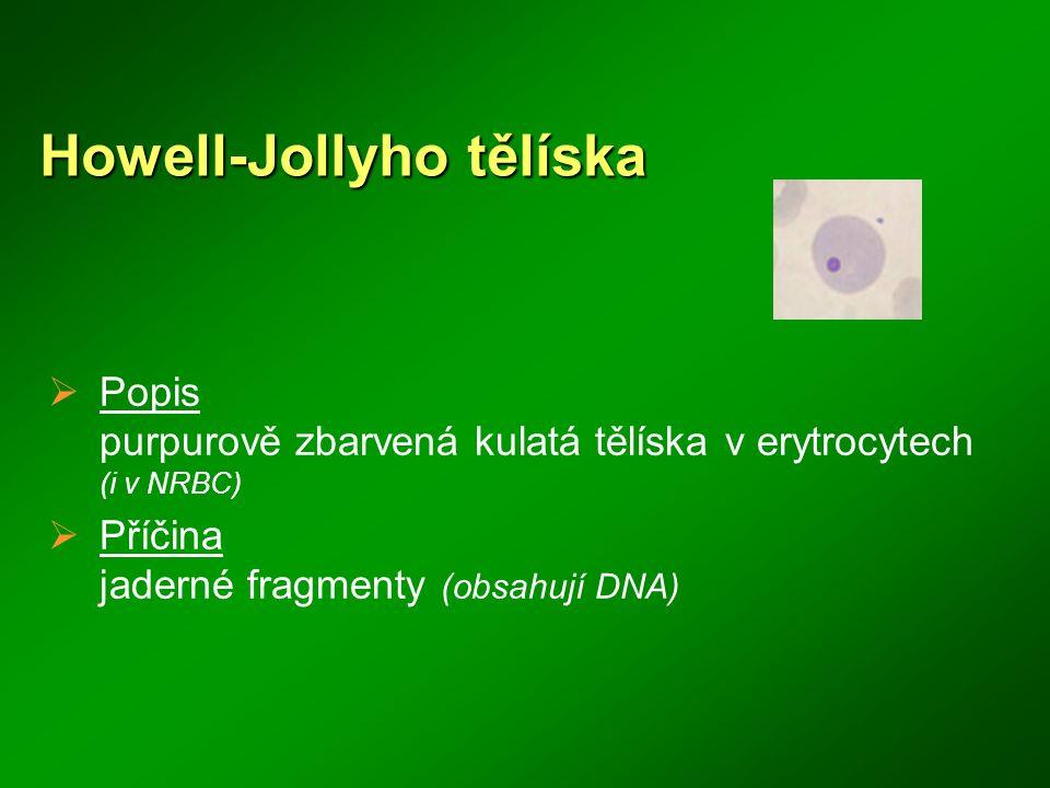 Howell-Jollyho tělíska  Popis purpurově zbarvená kulatá tělíska v erytrocytech (i v NRBC)  Příčina jaderné fragmenty (obsahují DNA)