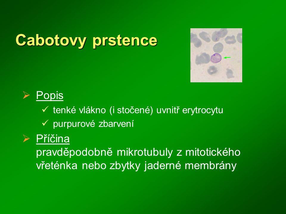 Cabotovy prstence  Popis tenké vlákno (i stočené) uvnitř erytrocytu purpurové zbarvení  Příčina pravděpodobně mikrotubuly z mitotického vřeténka neb