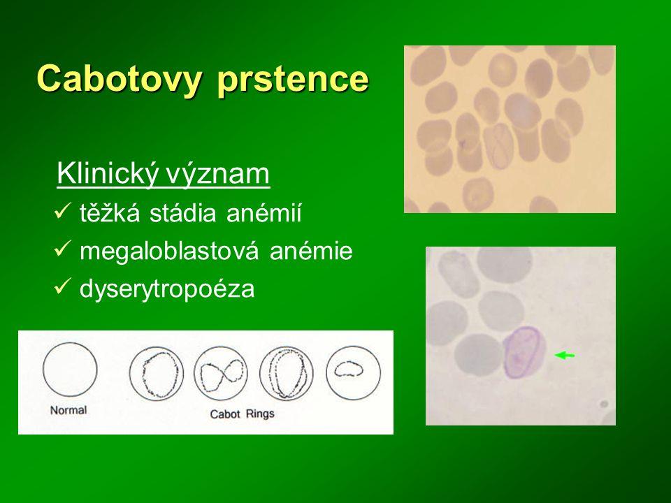 Cabotovy prstence Klinický význam těžká stádia anémií megaloblastová anémie dyserytropoéza