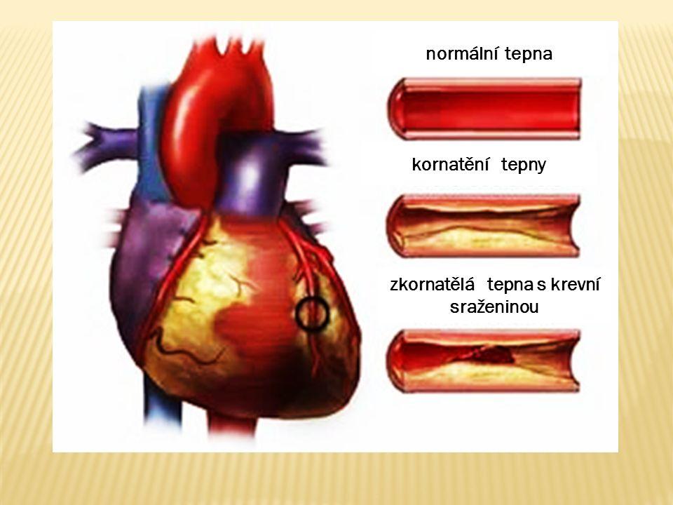 normální tepna kornatění tepny zkornatělá tepna s krevní sraženinou