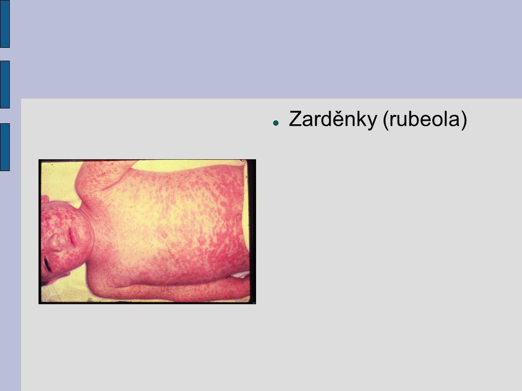 Zarděnky (rubeola)