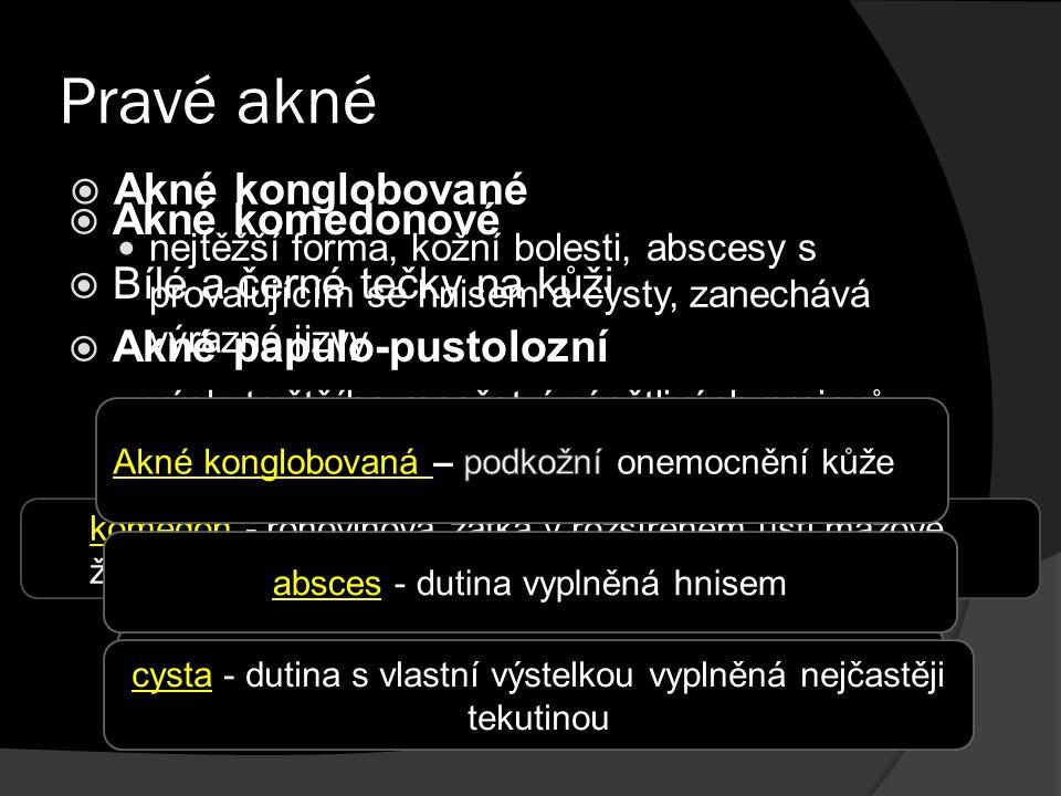 Pravé akné  Akné komedonové  Bílé a černé tečky na kůži  Akné papulo-pustolozní výskyt většího množství zánětlivých projevů - červené pupínky komedon - rohovinová zátka v rozšířeném ústí mazové žlázy papula - červený pupínek bez obsahu hnisu pustula - červený pupínek obsahující hnis  Akné konglobované nejtěžší forma, kožní bolesti, abscesy s provalujícím se hnisem a cysty, zanechává výrazné jizvy absces - dutina vyplněná hnisem cysta - dutina s vlastní výstelkou vyplněná nejčastěji tekutinou