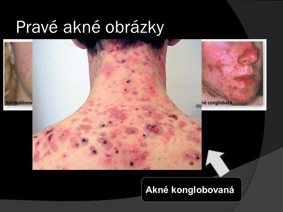 Pravé akné obrázky Akné konglobovaná