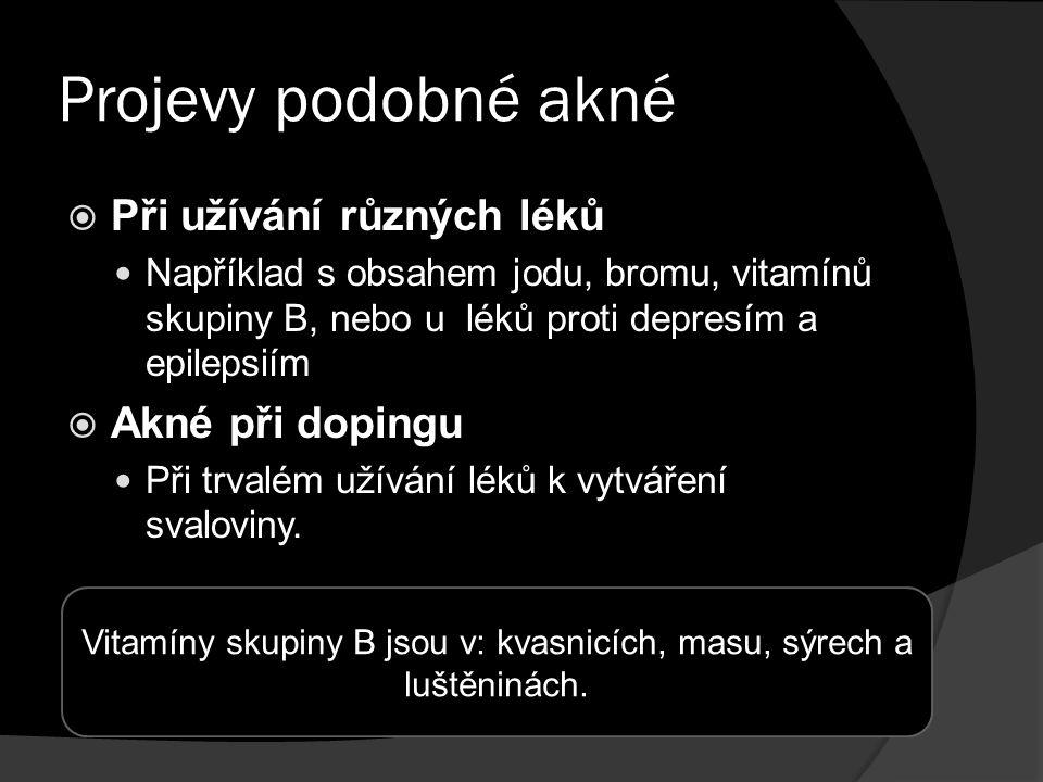Projevy podobné akné  Při užívání různých léků Například s obsahem jodu, bromu, vitamínů skupiny B, nebo u léků proti depresím a epilepsiím  Akné při dopingu Při trvalém užívání léků k vytváření svaloviny.