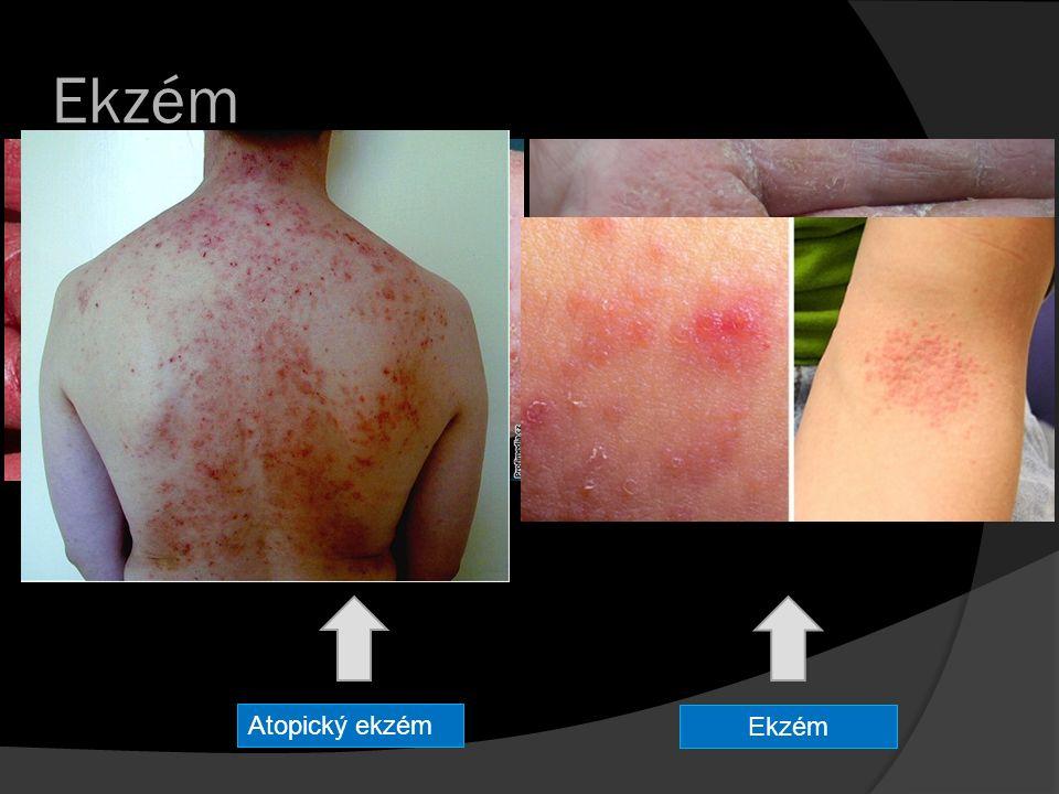 Zdroje  http://www.ceskenoviny.cz http://www.ceskenoviny.cz  http://www.vitalia.cz http://www.vitalia.cz  http://www.ona.idnes.cz http://www.ona.idnes.cz  http://www.proalergiky.cz http://www.proalergiky.cz  http://www.ordinace.cz http://www.ordinace.cz  http://www.moje-rodina.cz http://www.moje-rodina.cz  https://cs.wikipedia.org/wiki/ https://cs.wikipedia.org/wiki/  http://www.poradna-hojeni-ran.cz http://www.poradna-hojeni-ran.cz  silamore.webnode.cz silamore.webnode.cz  http://www.ceskatelevize.cz http://www.ceskatelevize.cz