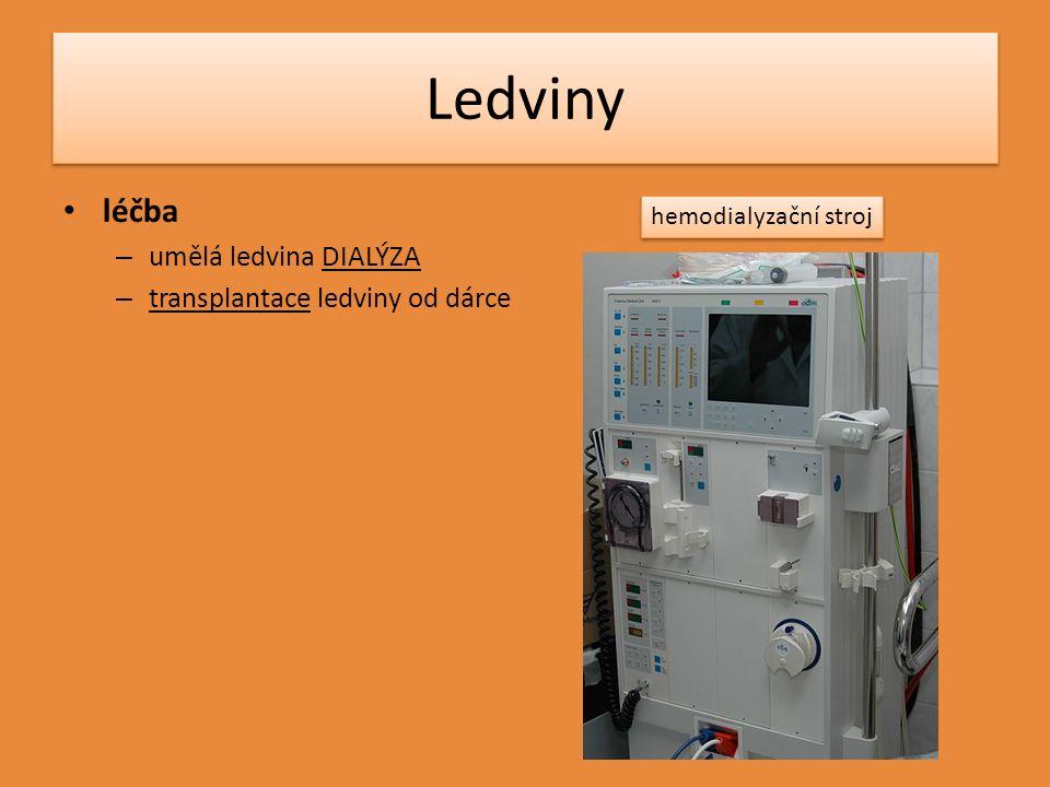 Ledviny léčba – umělá ledvina DIALÝZA – transplantace ledviny od dárce hemodialyzační stroj