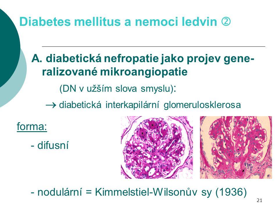 21 Diabetes mellitus a nemoci ledvin  A. diabetická nefropatie jako projev gene- ralizované mikroangiopatie (DN v užším slova smyslu) :  diabetická