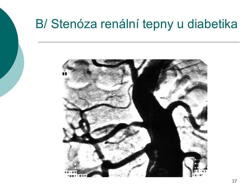 37 B/ Stenóza renální tepny u diabetika