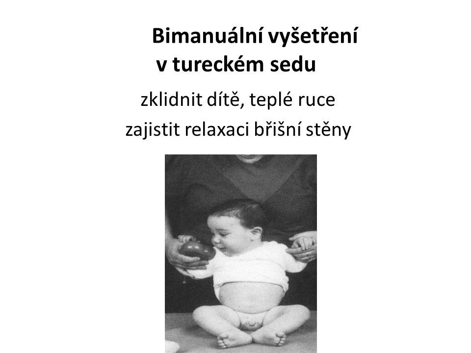 Bimanuální vyšetření v tureckém sedu zklidnit dítě, teplé ruce zajistit relaxaci břišní stěny