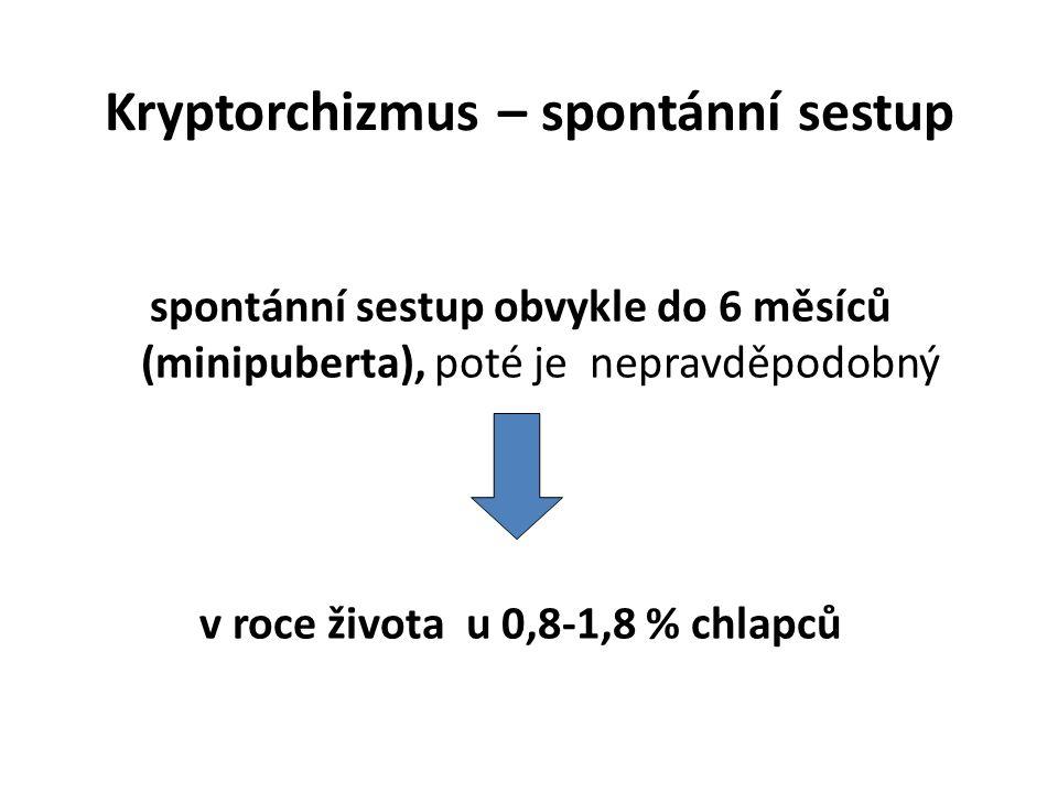 Kryptorchizmus – spontánní sestup spontánní sestup obvykle do 6 měsíců (minipuberta), poté je nepravděpodobný v roce života u 0,8-1,8 % chlapců