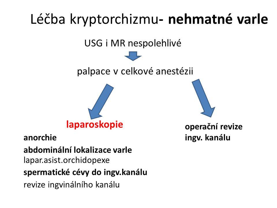 Léčba kryptorchizmu- nehmatné varle USG i MR nespolehlivé palpace v celkové anestézii laparoskopie anorchie abdominální lokalizace varle lapar.asist.orchidopexe spermatické cévy do ingv.kanálu revize ingvinálního kanálu operační revize ingv.