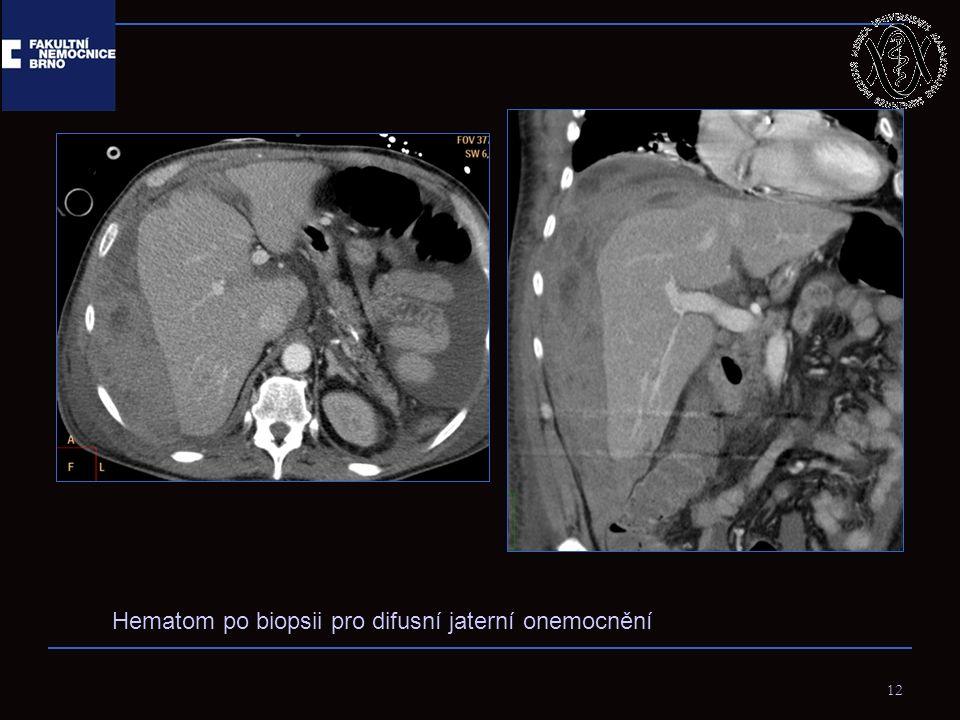 12 Hematom po biopsii pro difusní jaterní onemocnění